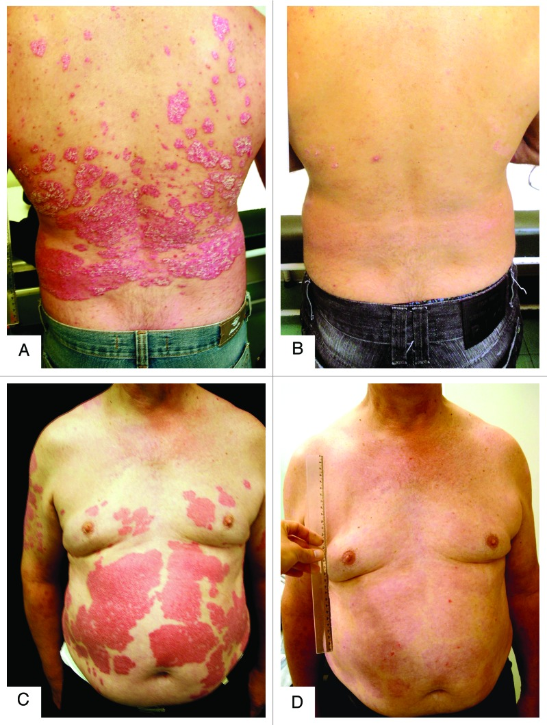 brazil psoriasis and vitamin d3 connection 2008